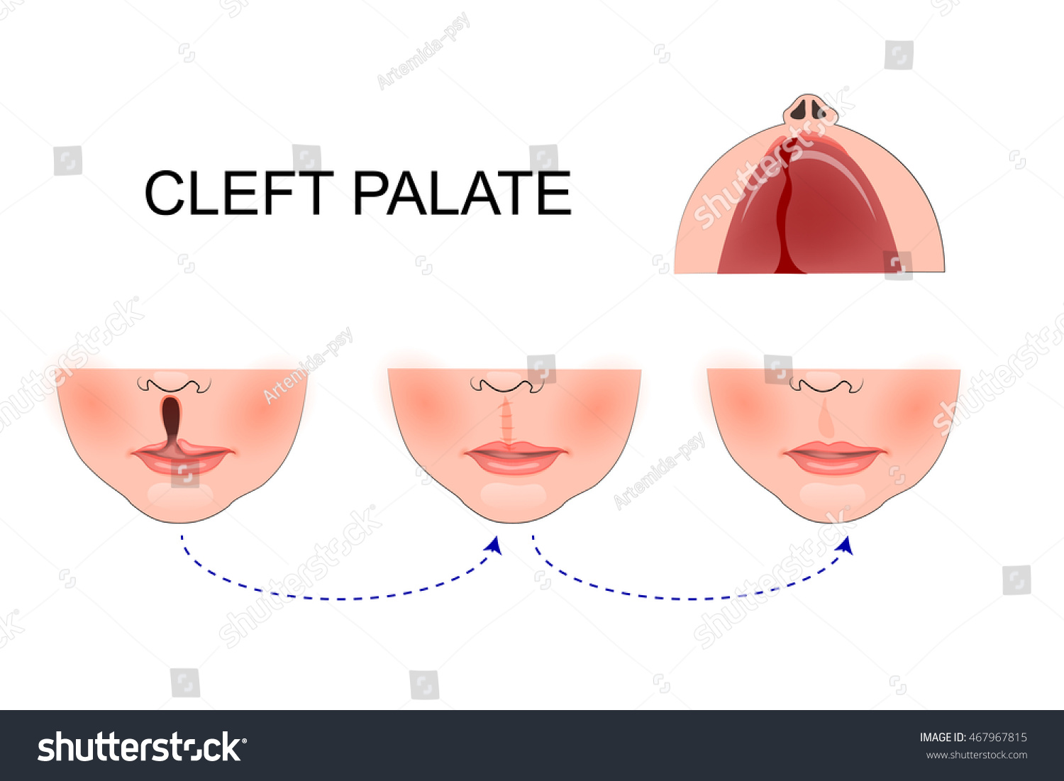 Illustration Cleft Palate Child Plastic Surgery Stock Vector ...