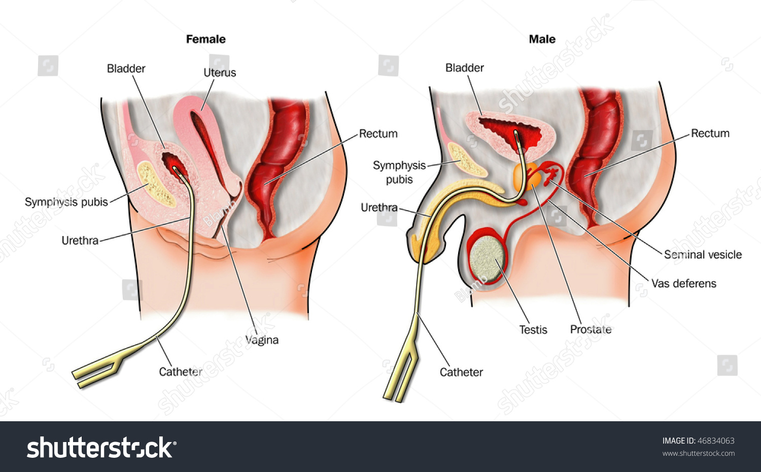 Urinary Catheters Situ Labeled Stock Illustration 46834063 ...