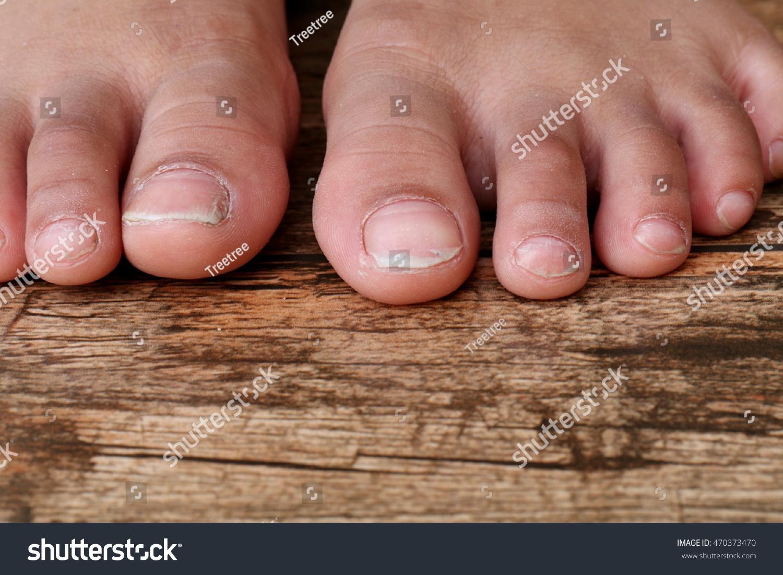 Closeup Asian Girl Toes Long Nails Stock Photo (Royalty Free ...