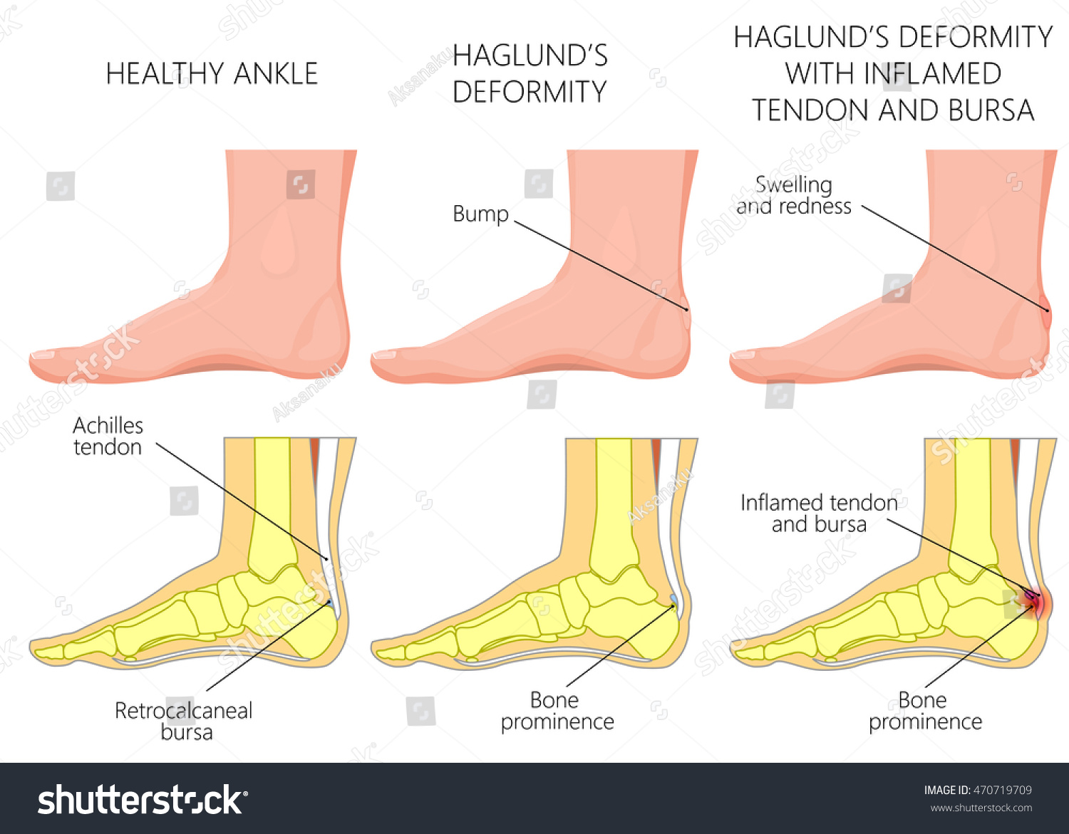 Vector Illustration Ankle Side View Haglunds Stock Vector HD ...
