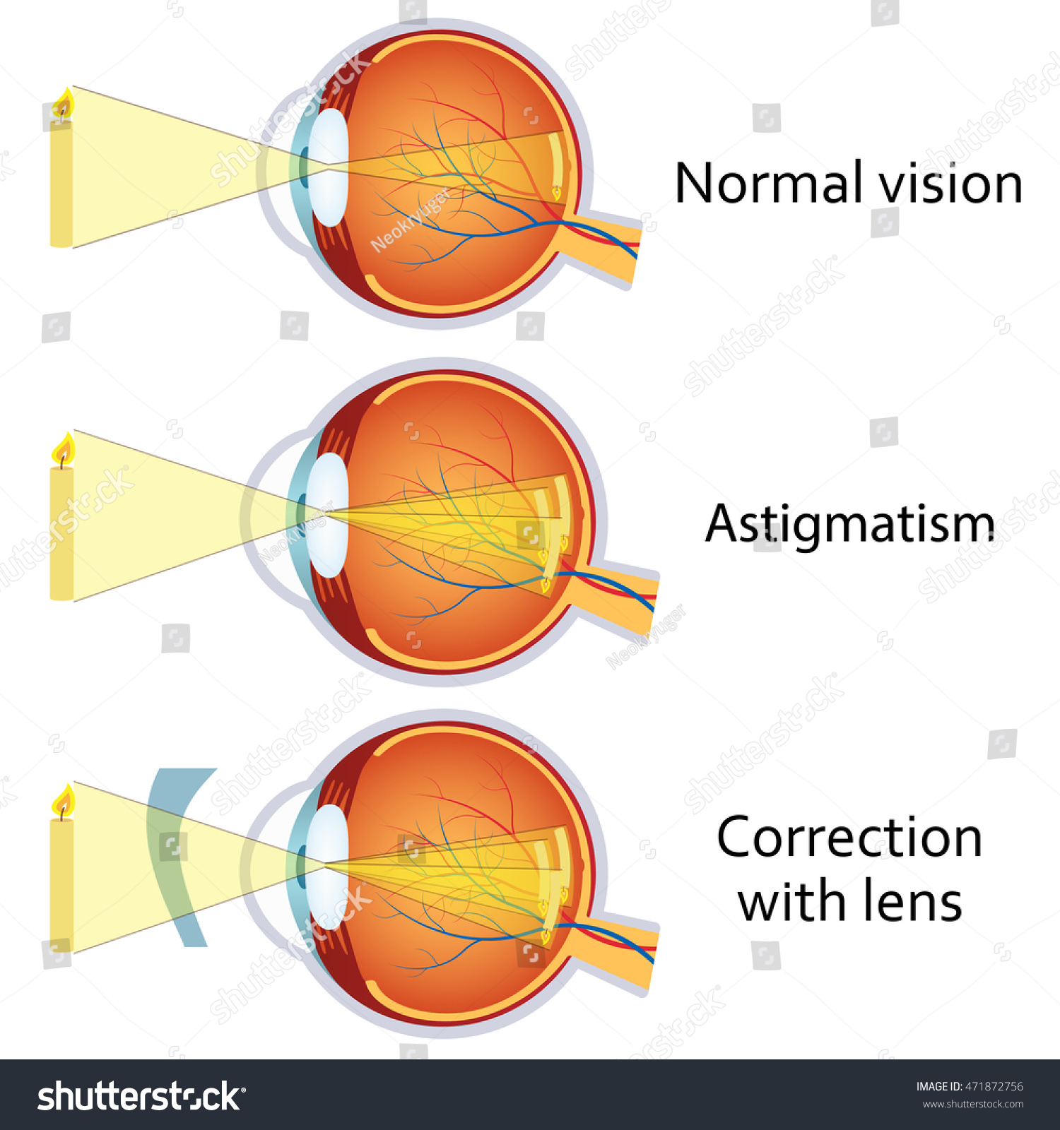 Astigmatism Corrected By Cylindrical Lens Eyesight Stock Photo