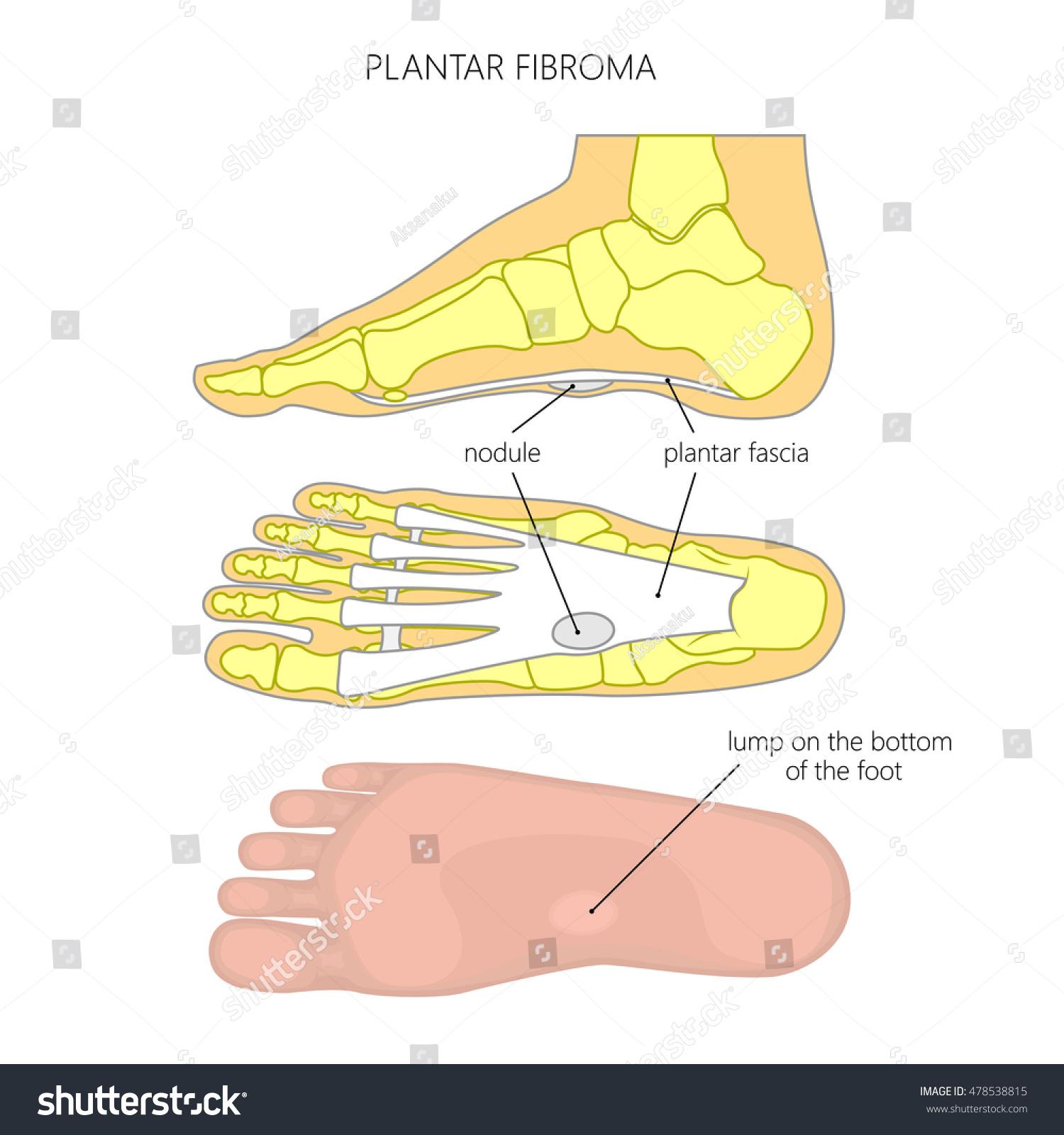 Vector diagram plantar fibroma fibromatosis tumor stock vector vector diagram of plantar fibroma or fibromatosis tumor on the plantar fascia of an ankle pooptronica