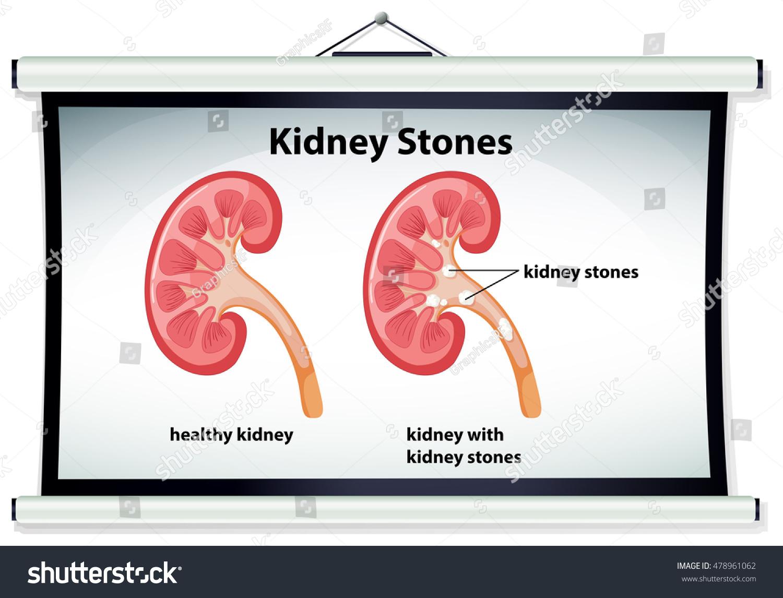 Diagram showing kidney stones illustration stock vector 478961062 diagram showing kidney stones illustration ccuart Choice Image