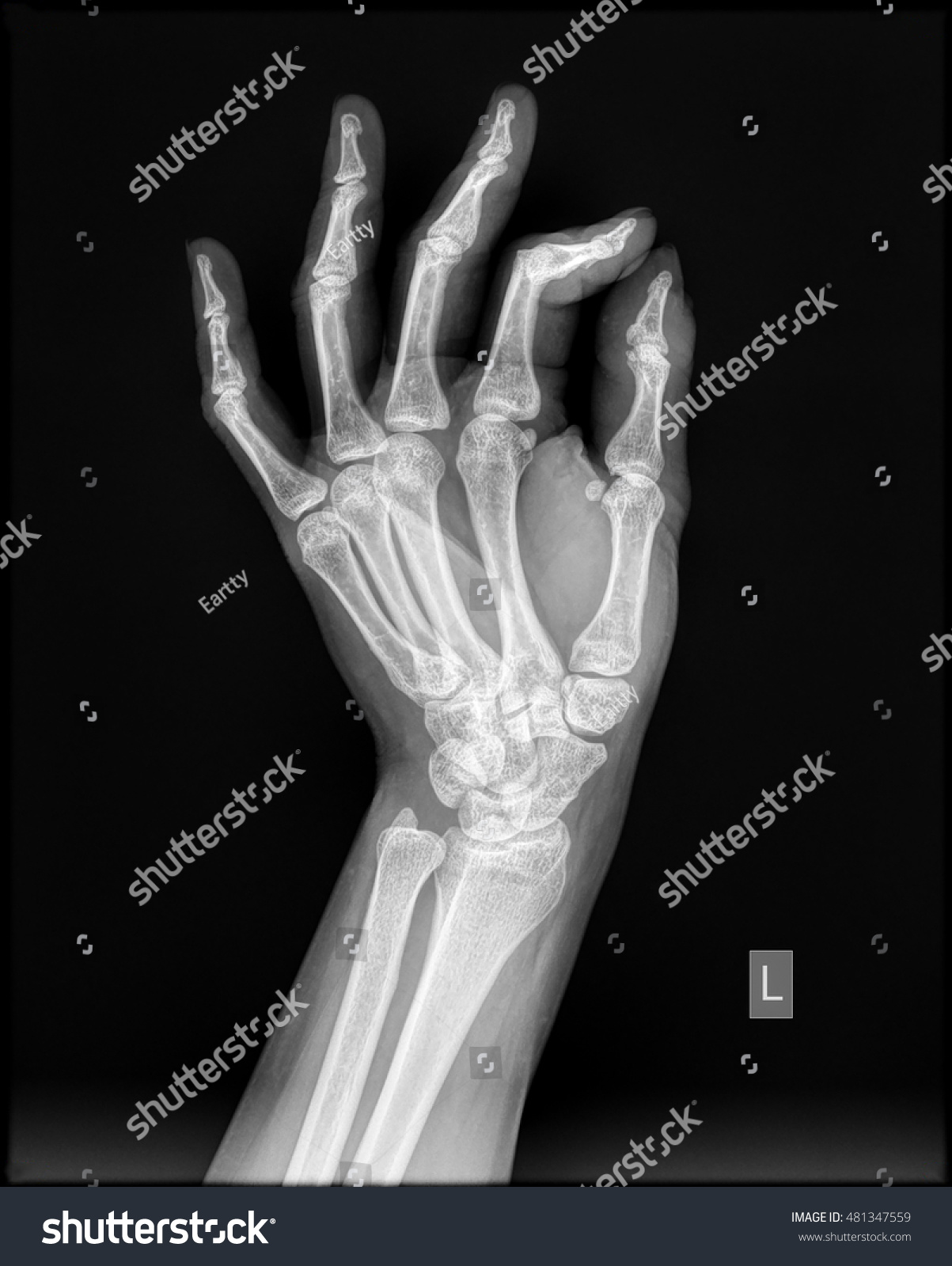 Left Hand Xray Lateral View Healthy Stock Photo (Edit Now) 481347559 ...