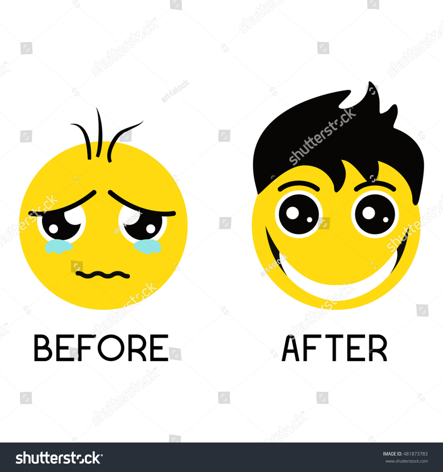 sad balding emoticon before alopecia treatment stock vector royalty