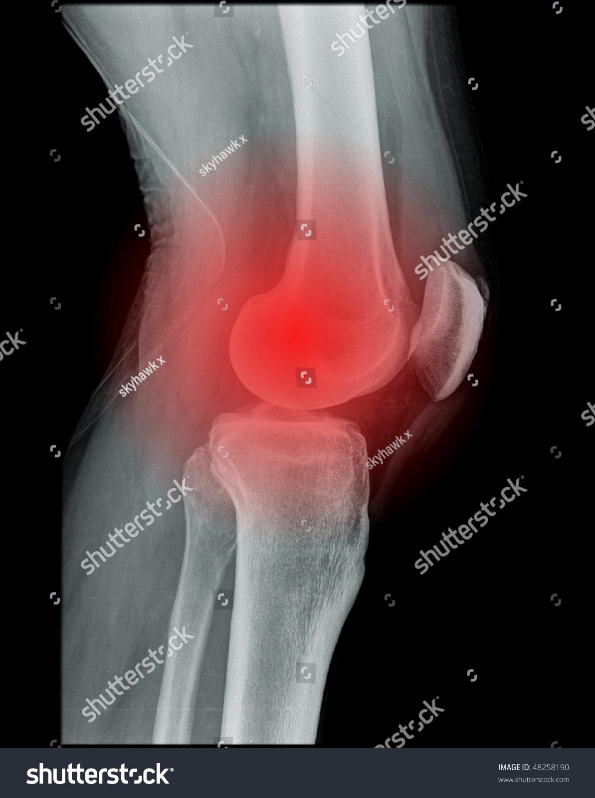 Knee Pain Xray Human Knee Stock Photo 48258190 - Shutterstock