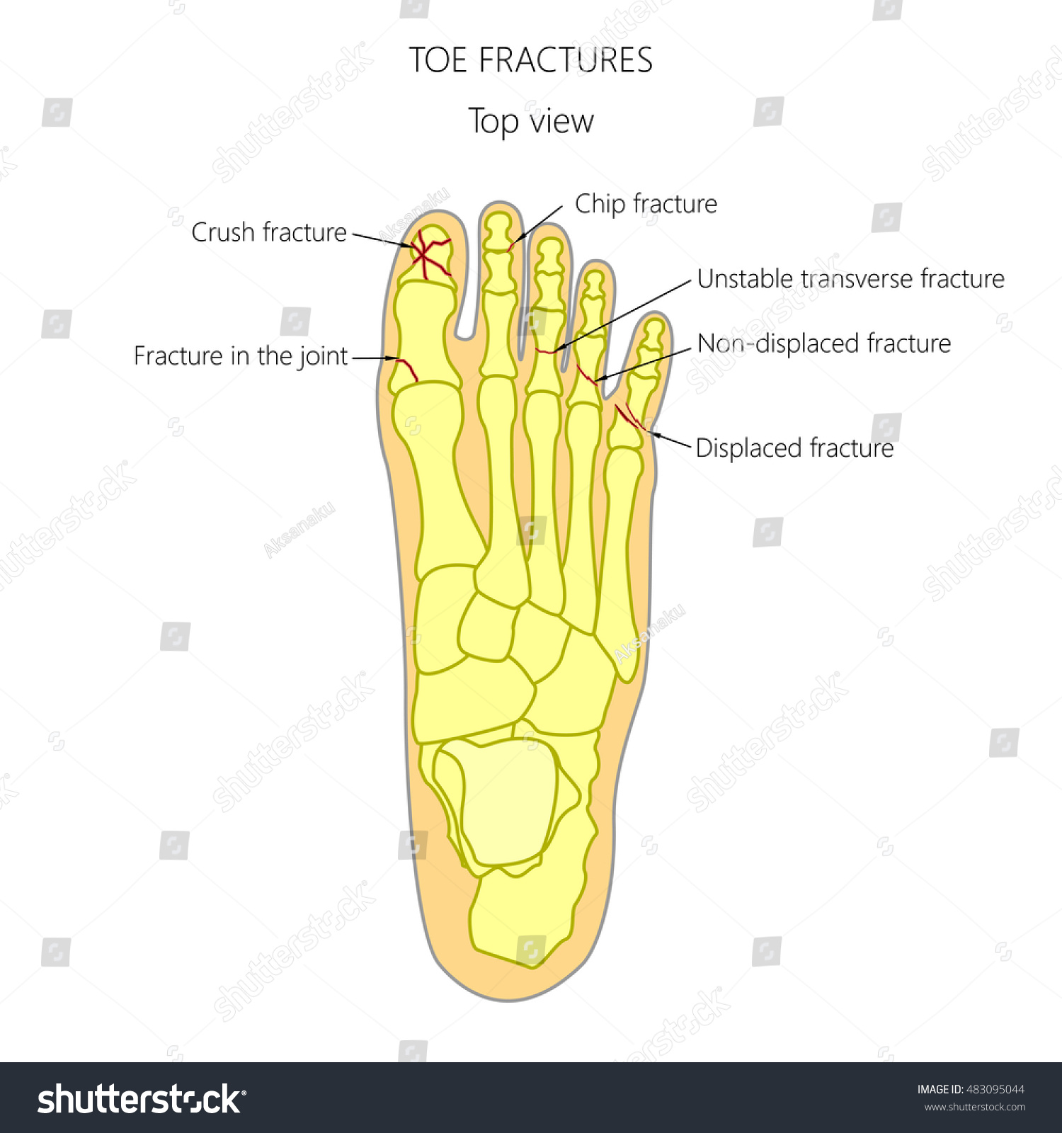 Vector Illustration Diagram Toe Fracture Types Stock Vector Royalty