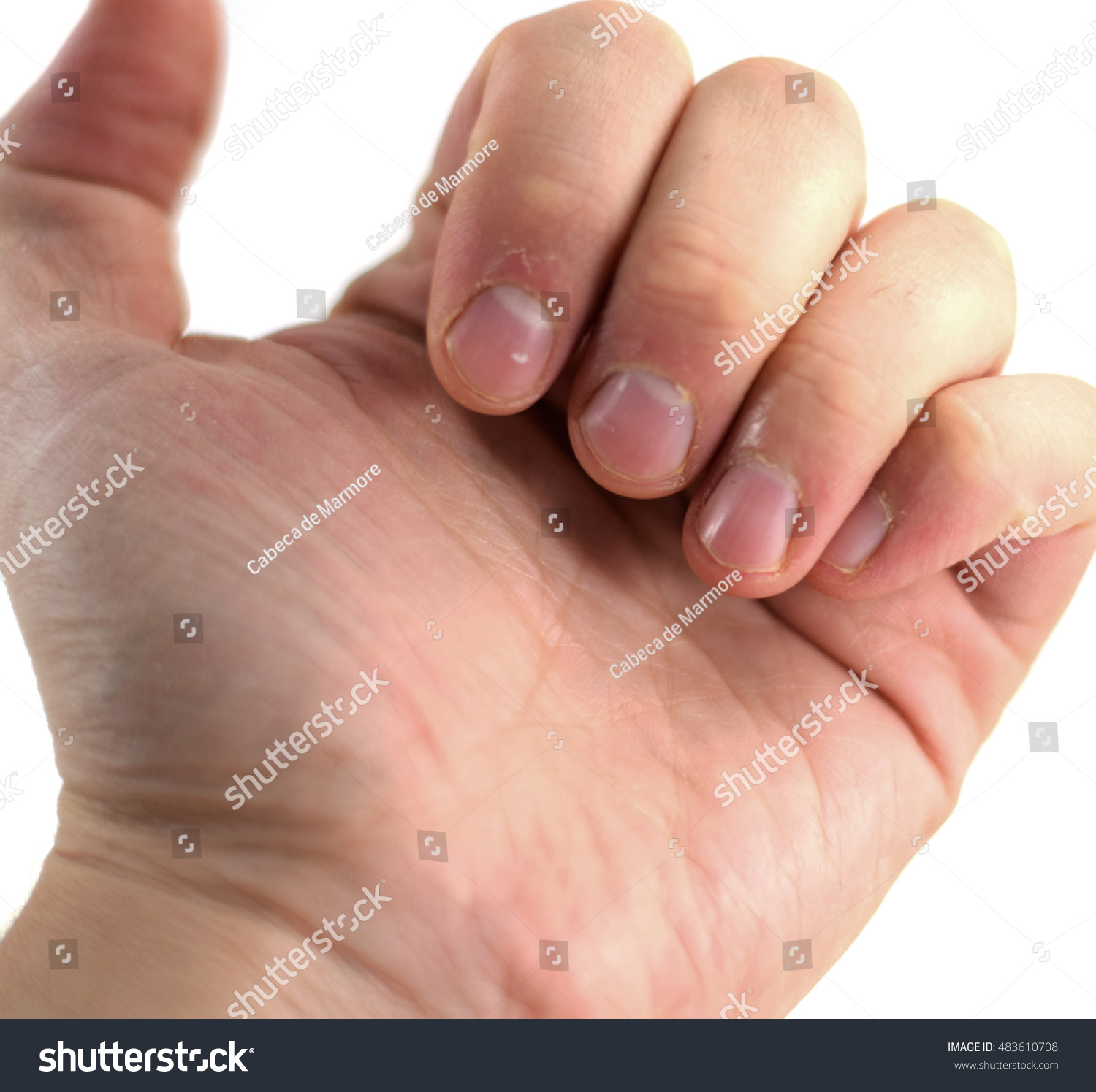Macro Closeup Fingers Dry Cuticles Young Stock Photo (Edit Now ...