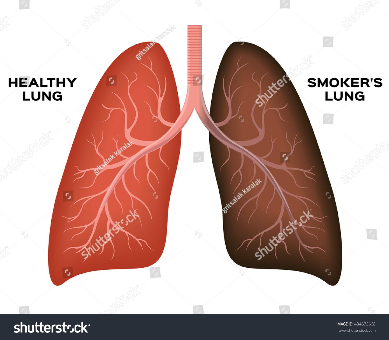 Normal Smokers Lung Vector Stock Vector 484673668 - Shutterstock