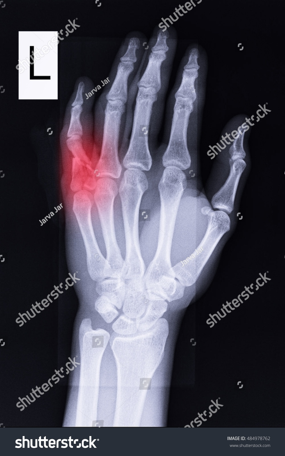 Why the little finger of the left hand goes numb What to do if the hand goes numb 23