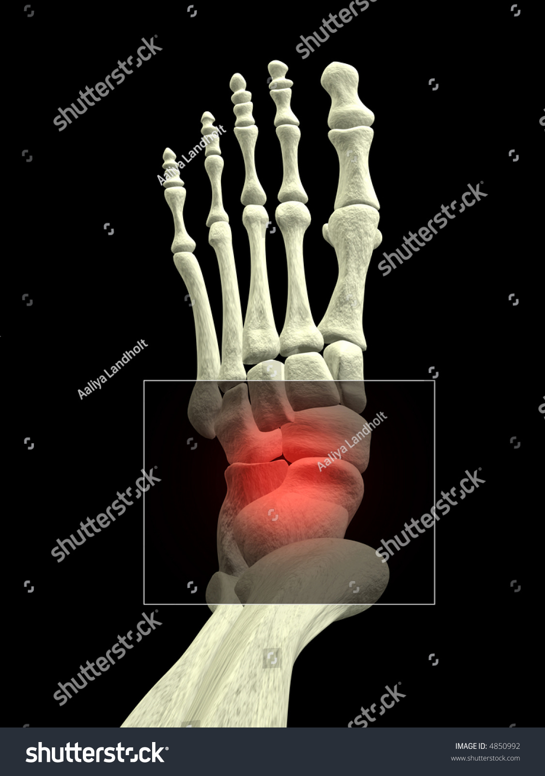 Royalty Free Stock Illustration of Foot Bones Ankle Pain Stock ...