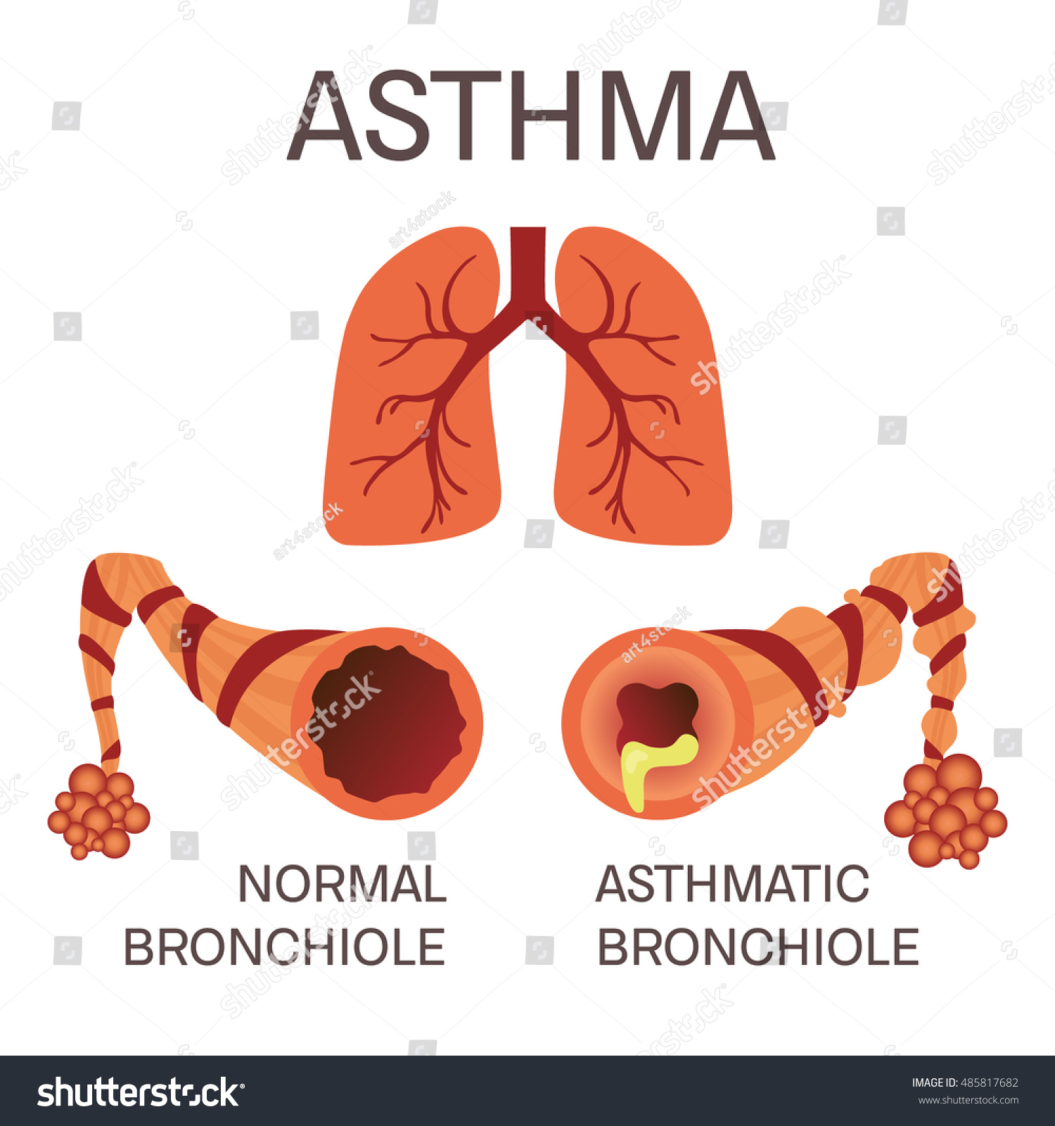 Illustration of human lungs and causes of Asthma on grey ... |Human Lungs With Asthma