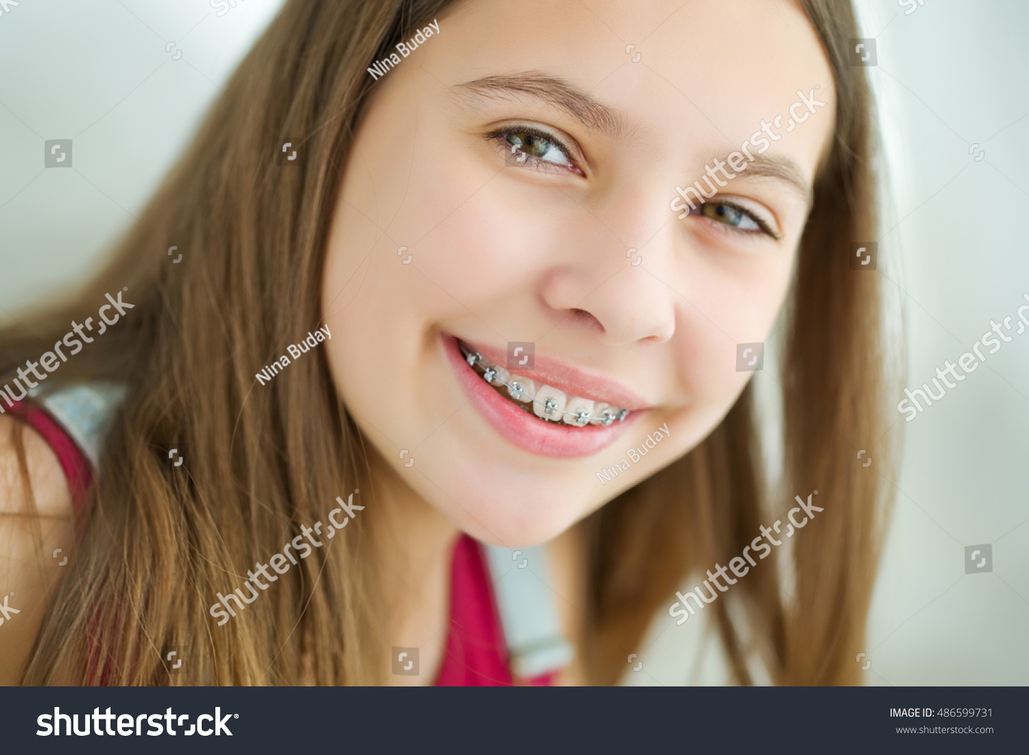 portrait cute kid dental braces smiling stock photo (royalty free