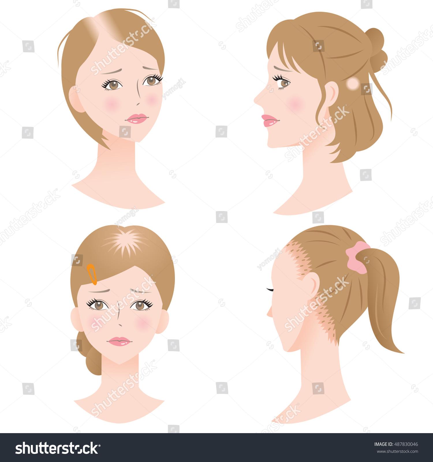 women pattern hair loss get receding stock vector 487830046