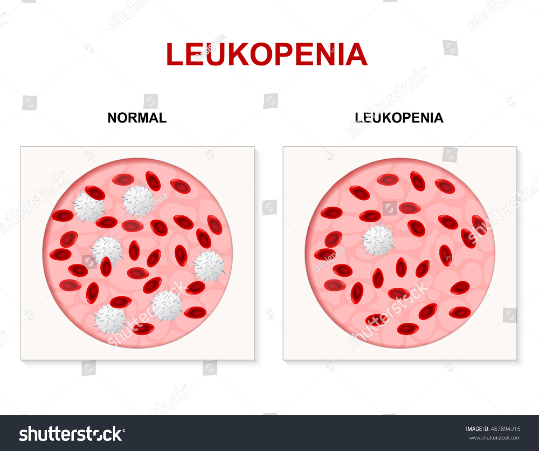 Leukopenia Numbers