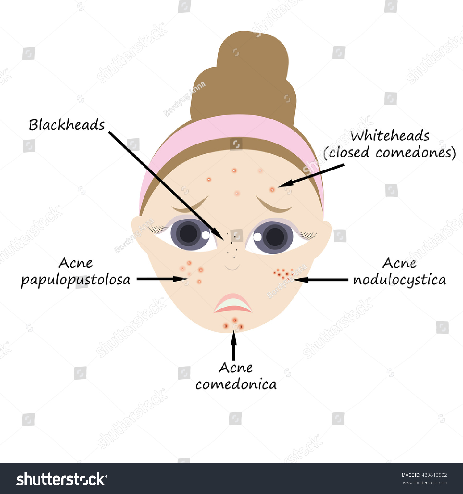 Types acne stock vector 489813502 shutterstock types of acne pooptronica