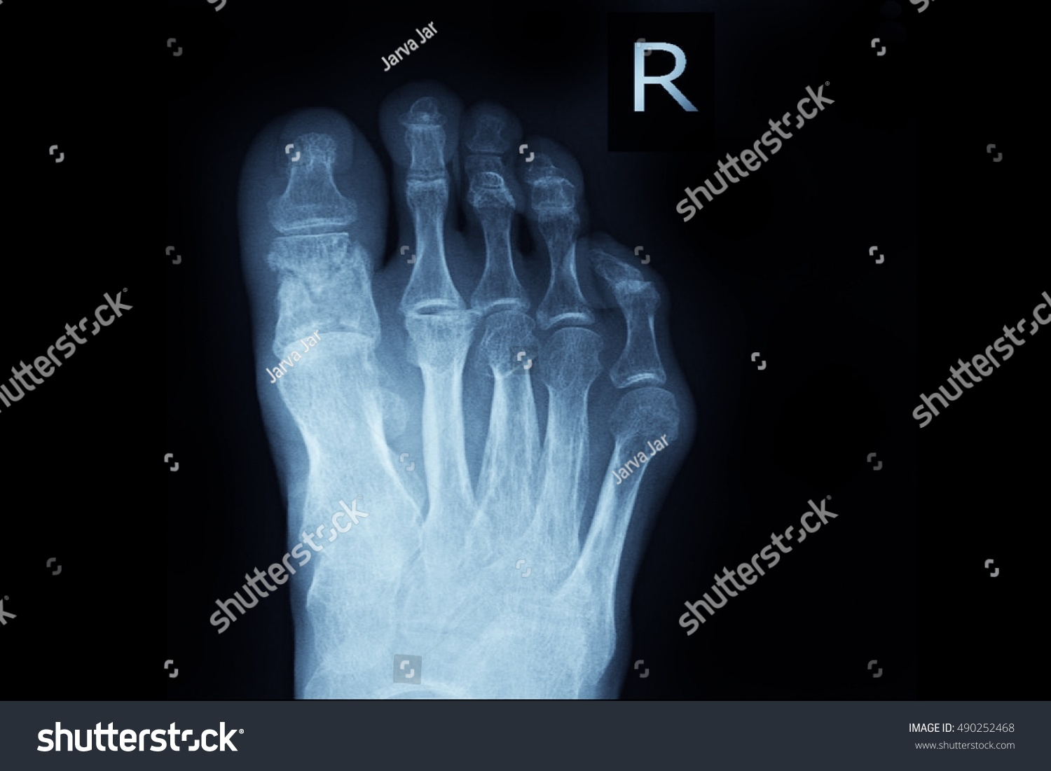 Xray Right Foot Show Fracture Big Stock Photo (Royalty Free ...