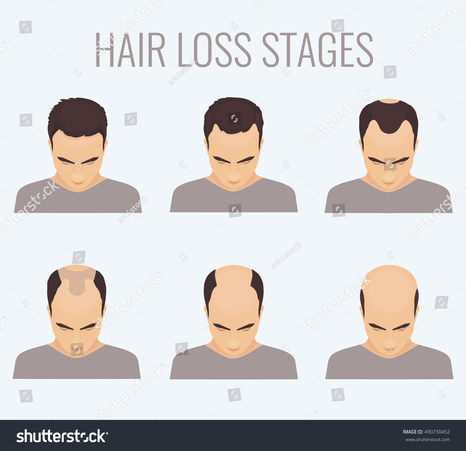Male Pattern Baldness Stages Simple Decoration