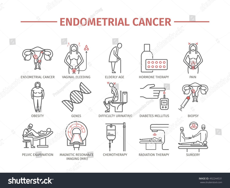 endometrial cancer svenska