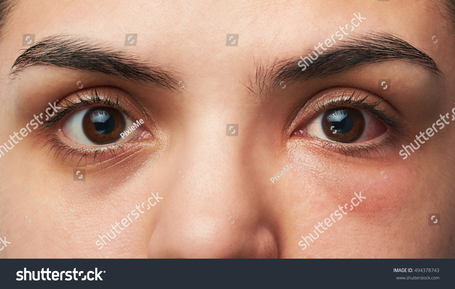 Close Up Of Two Woman Eyes With Allergy Reaction On One Red Eye Ez