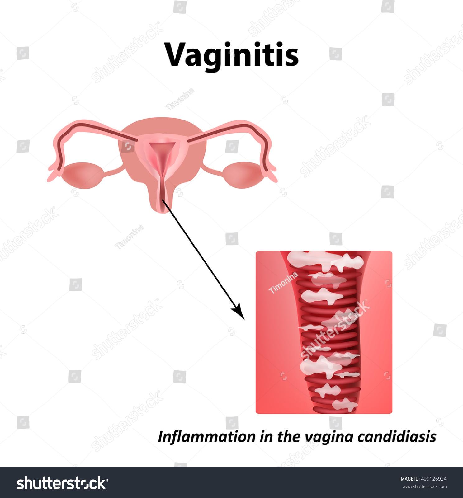 Vaginitis Inflammation Vagina ...