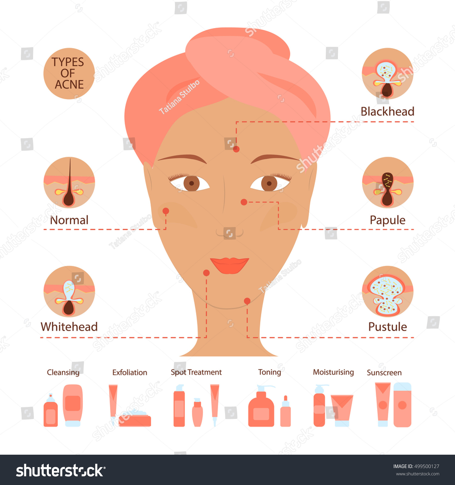 Types acne pimples human skin poster stock vector 499500127 types of acne pimples human skin poster facial treatments infographic modern flat design pooptronica
