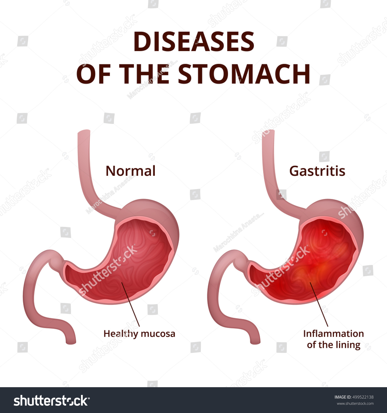 Anatomy Human Healthy Unhealthy Stomach Medical Stock ...