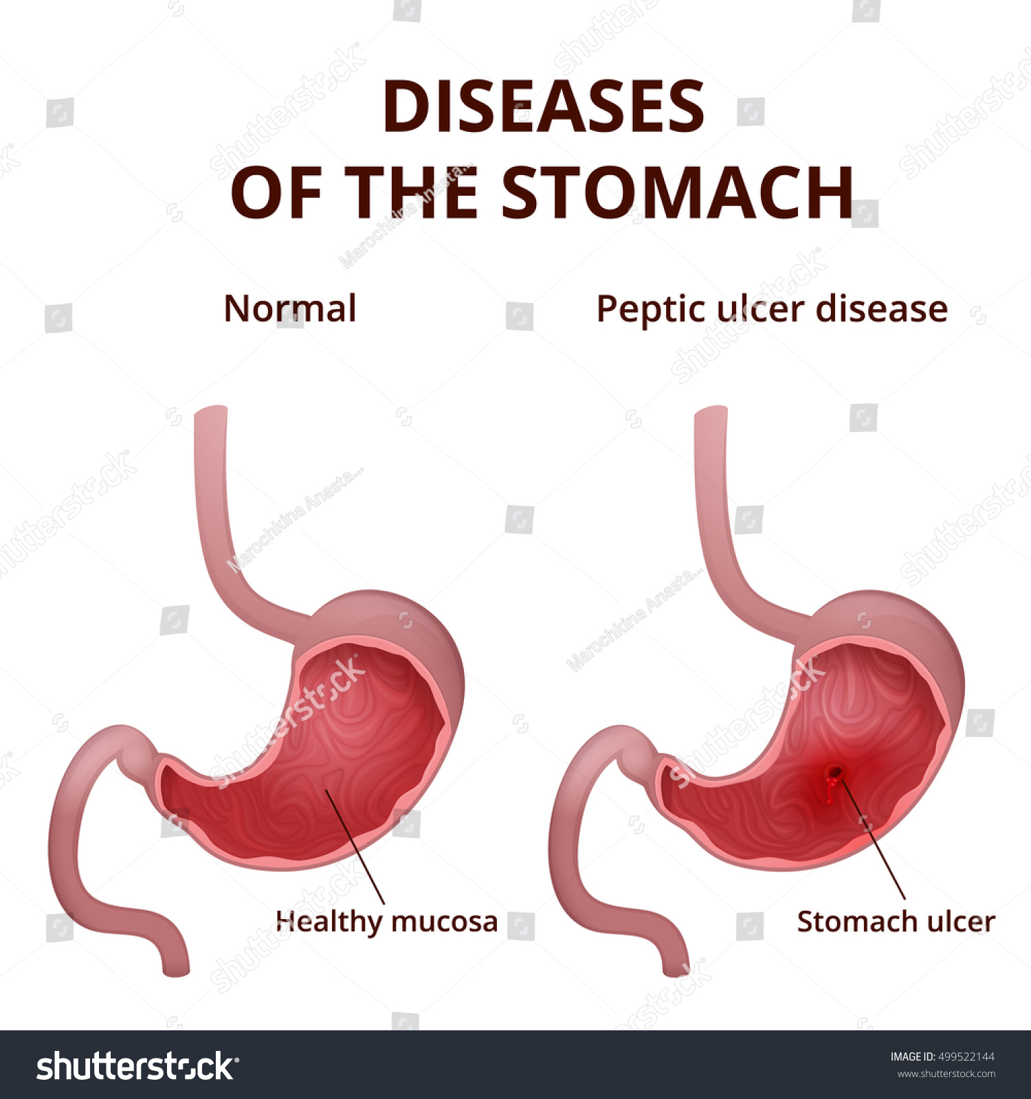 Anatomy Human Healthy Unhealthy Stomach Medical Stock Vector 2018