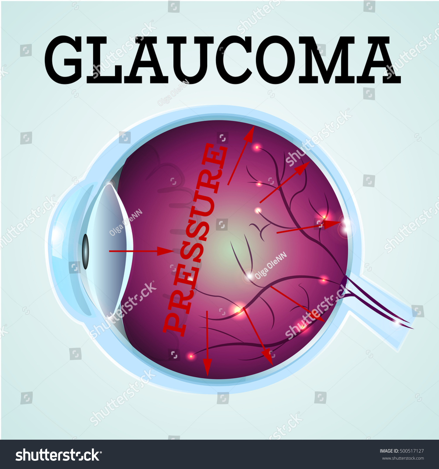 Human Glaucoma Disease Anatomy Structure Medical Infographics Stock