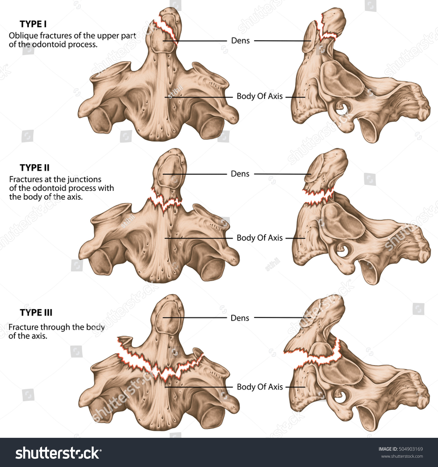 Three Types Odontoid Fractures Fractures Axis Stock Illustration ...