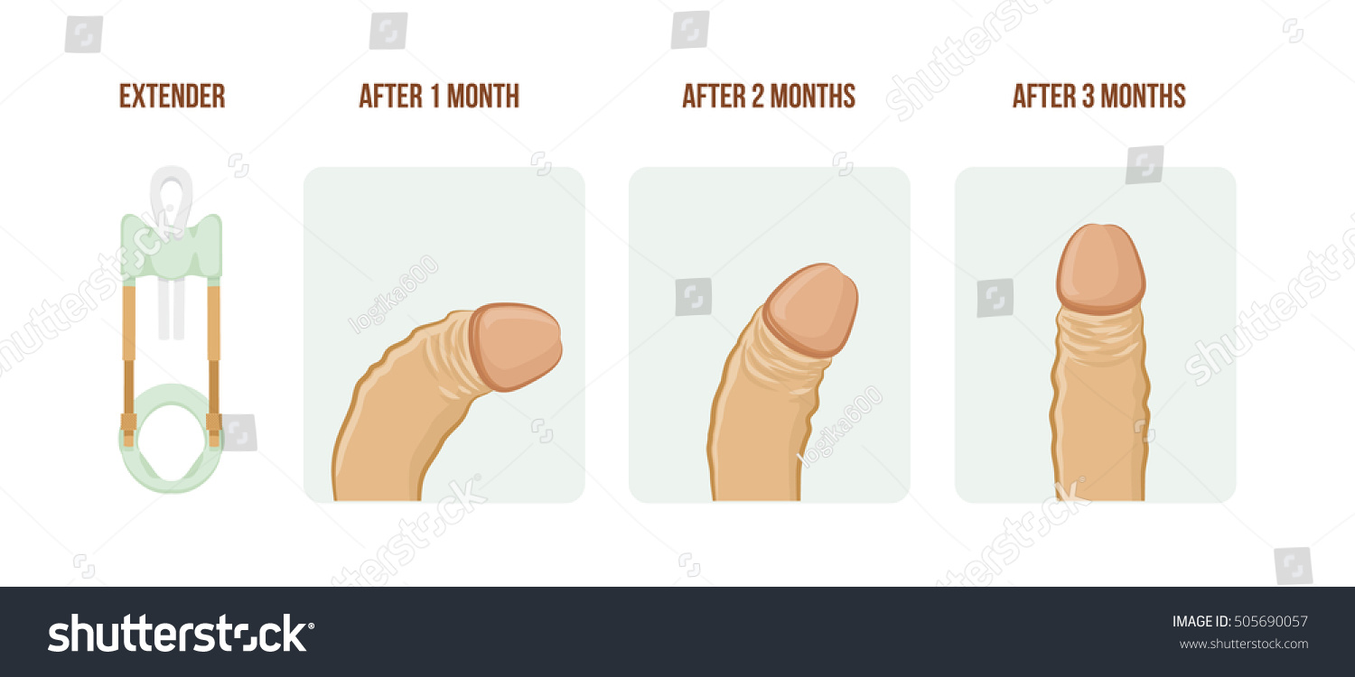 Pictures of curved penises