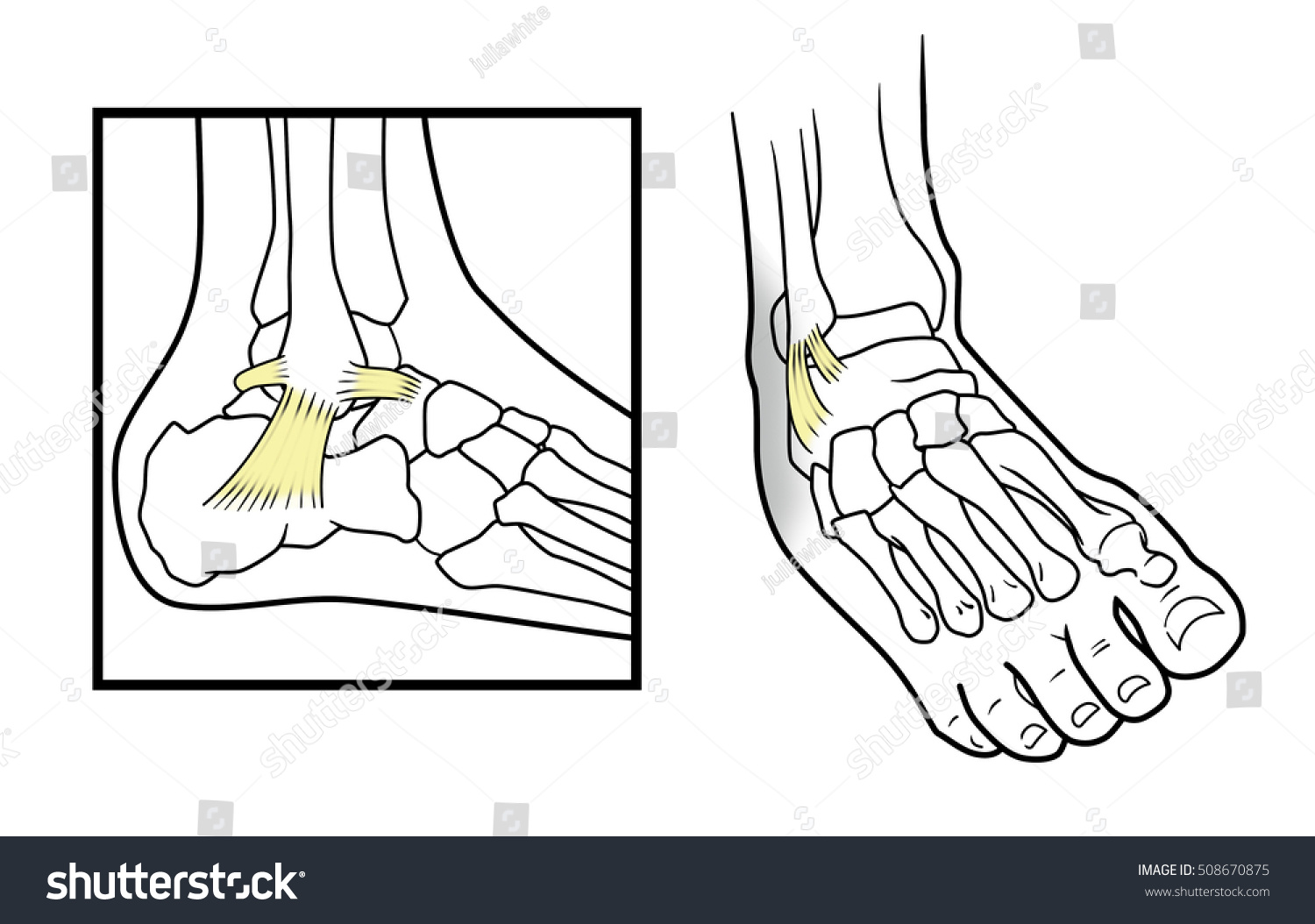 Dislocated ankle diagram on white background stock vector dislocated ankle diagram on a white background pooptronica