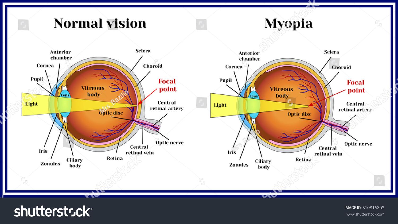 refractive errors eyeball myopia stock vector (royalty free Astigmatic Error refractive errors eyeball myopia