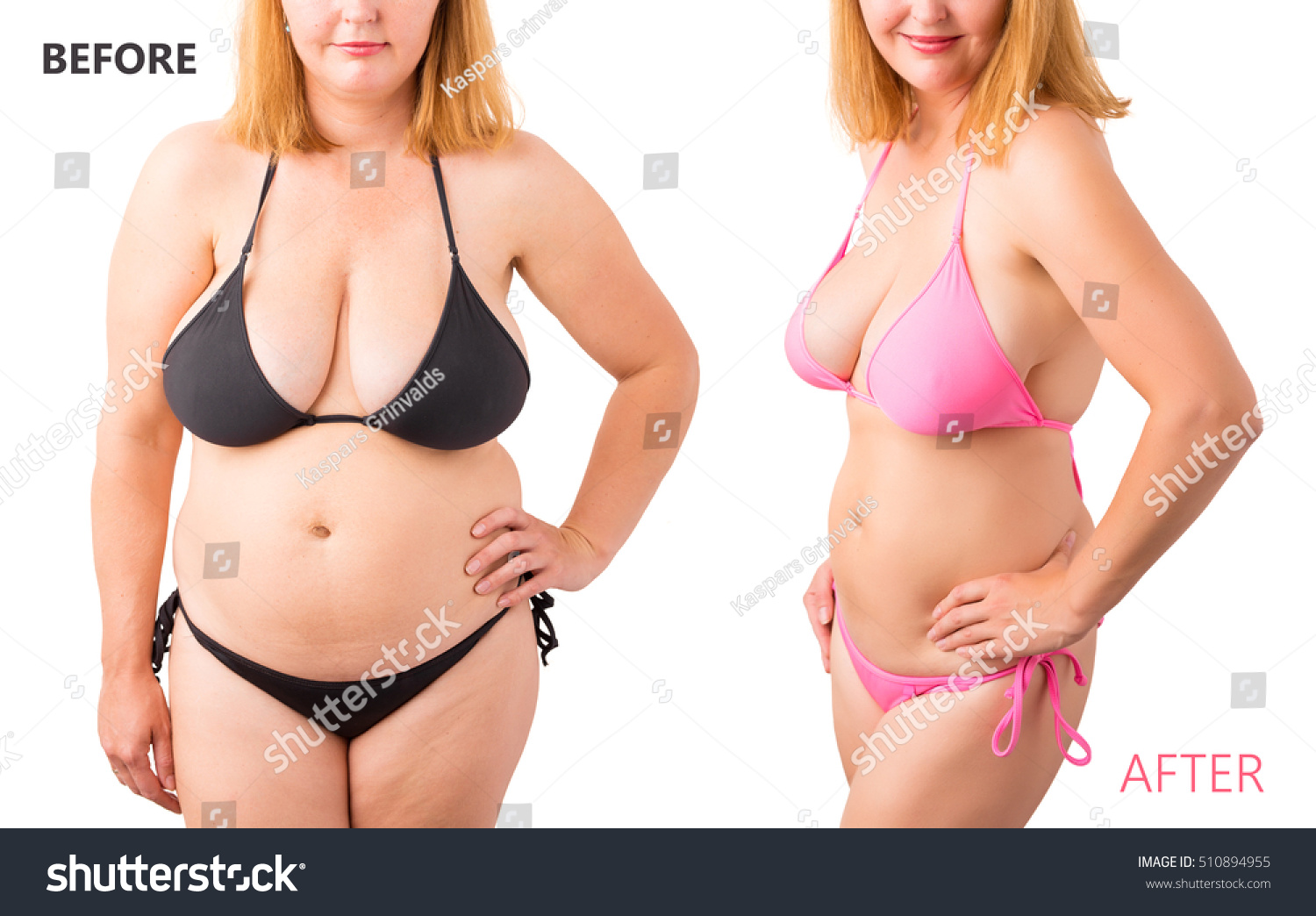 before and after weight loss bikini