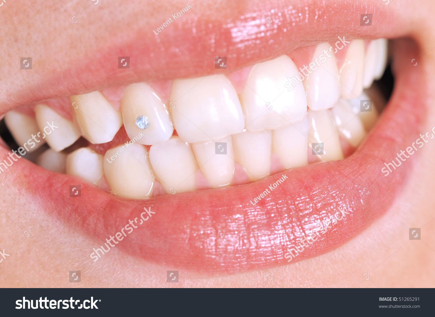 Close Up Of Patient S Open Mouth With A Diamond Tooth A