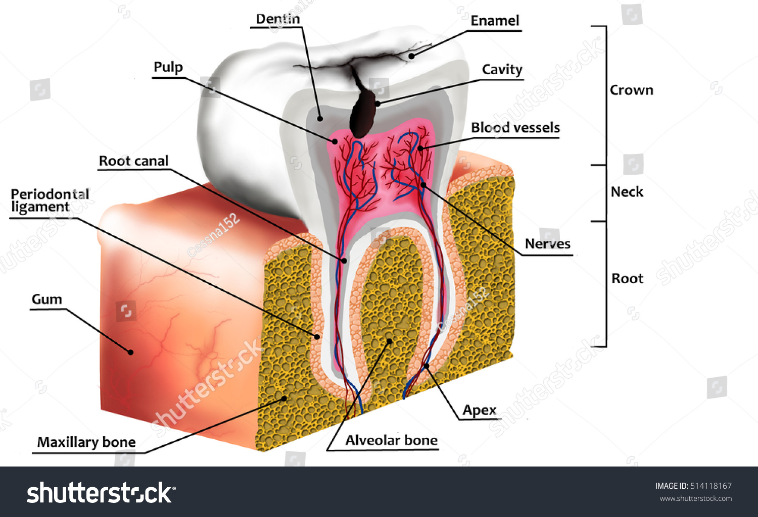 Human Tooth Decay Anatomy Diagram Description Stock Illustration