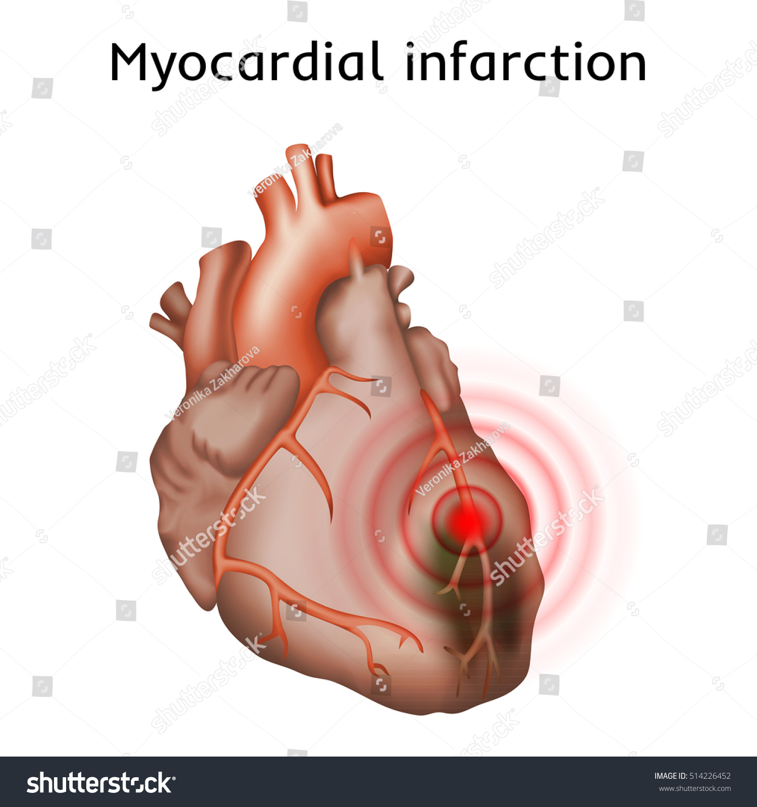 Myocardial Infarction Heart Attack Pain Damaged Stock Vektorgrafik