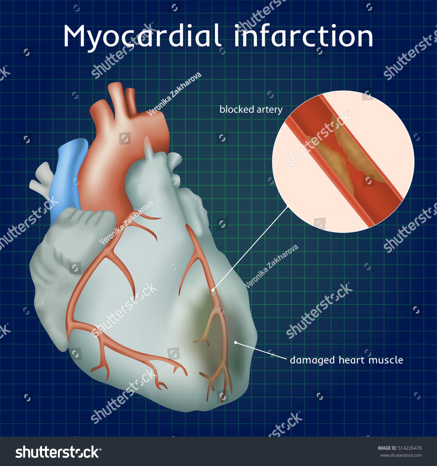 Myocardial Infarction Heart Attack Blocked Artery Stock Photo (Photo ...