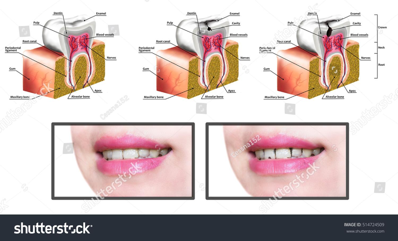 Human Tooth Anatomy Diagram Description Illustration Stock ...