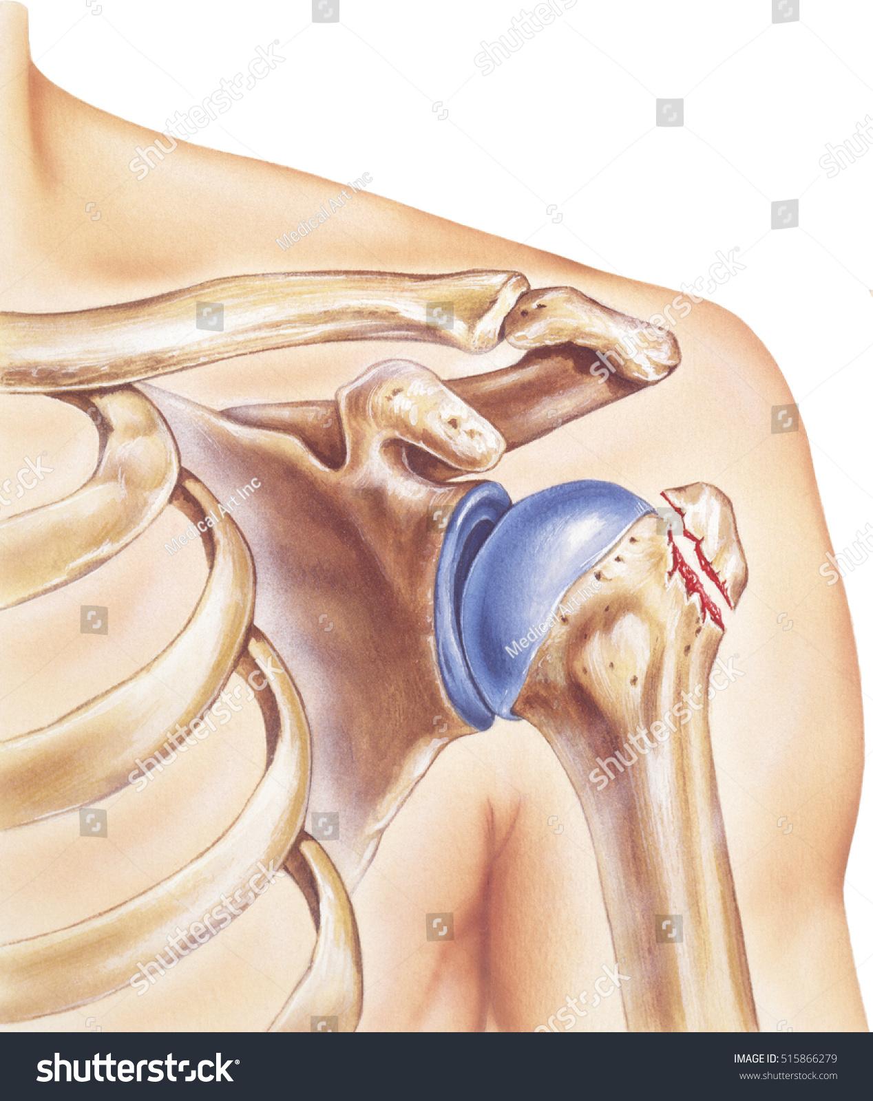 Royalty Free Stock Illustration Of Shoulder Broken Greater Tubercle