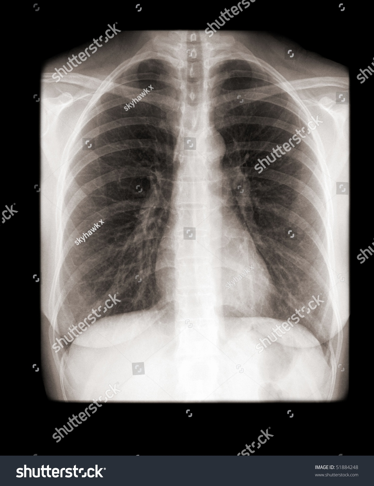 Human Chest Normal Lungs On Xray Stock Photo 51884248 ...
