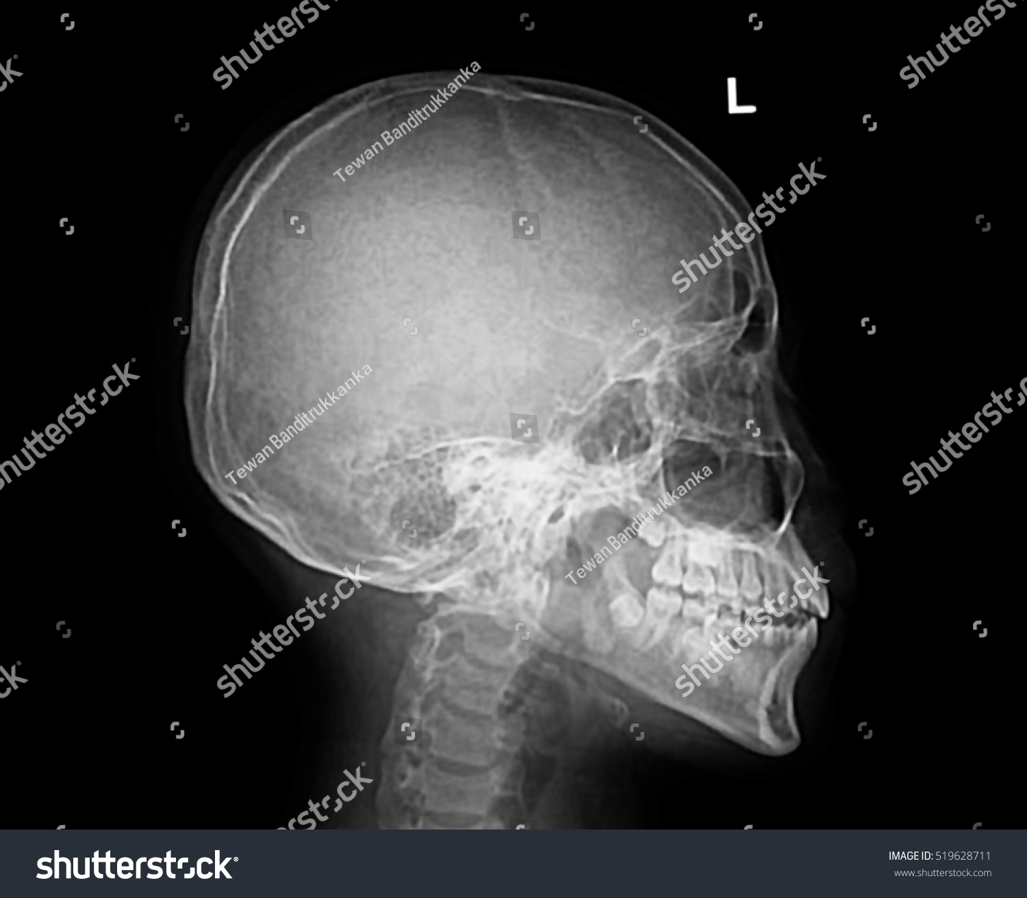 Film Xray Skull Lateral Show Normal Stock Photo Image Royalty
