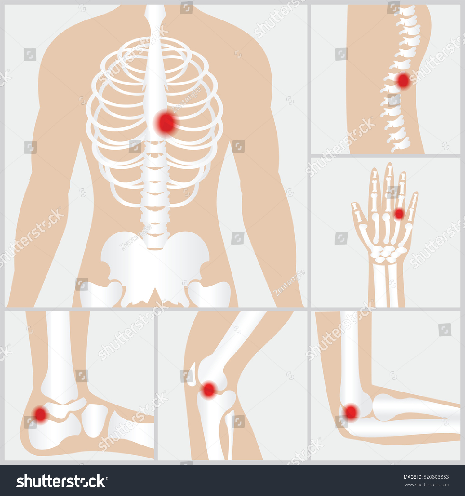 Disease Joints Boneshuman Joints Knee Joint Stock Vector 520803883 ...