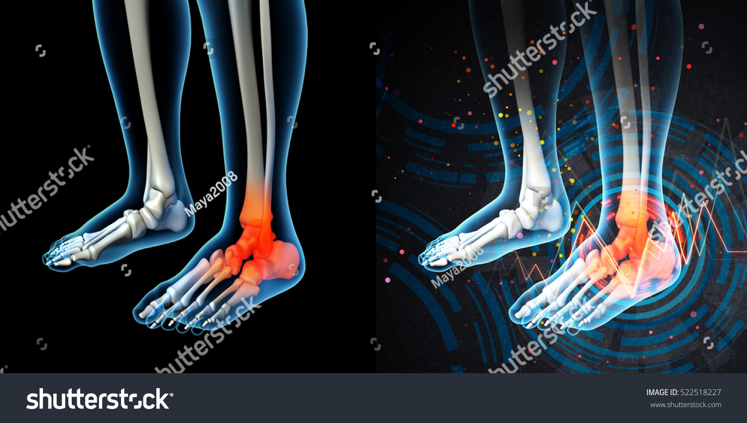 3 D Render Human Foot Pain Anatomy Stock Illustration Royalty Free