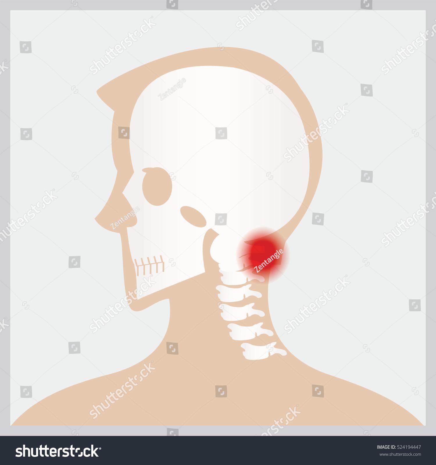 Disease Head Neck Joints Boneshuman Joints Stock Vector (Royalty ...