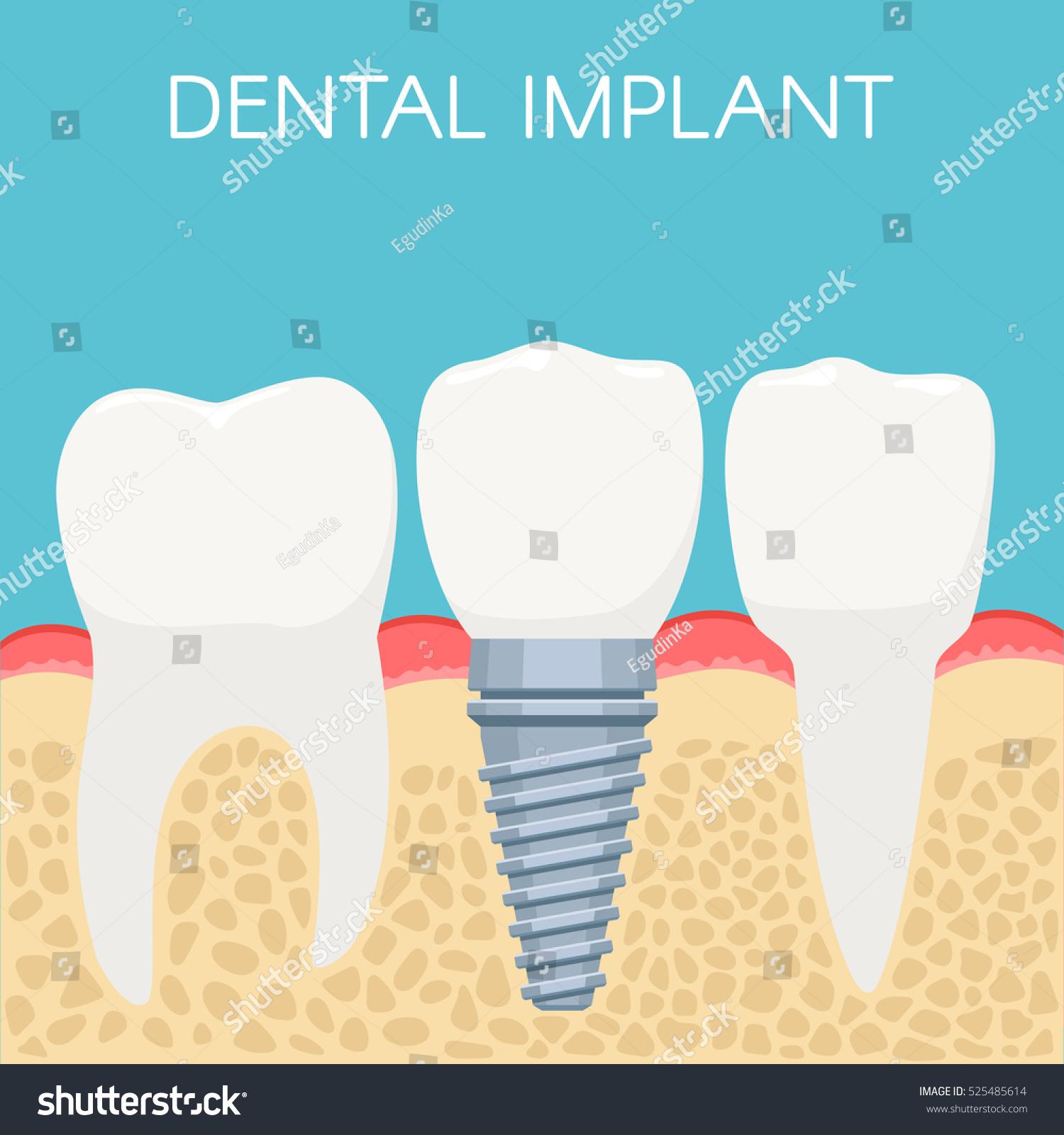 Anatomy Human Teeth Dental Implant Stomatology Stock Vector HD ...