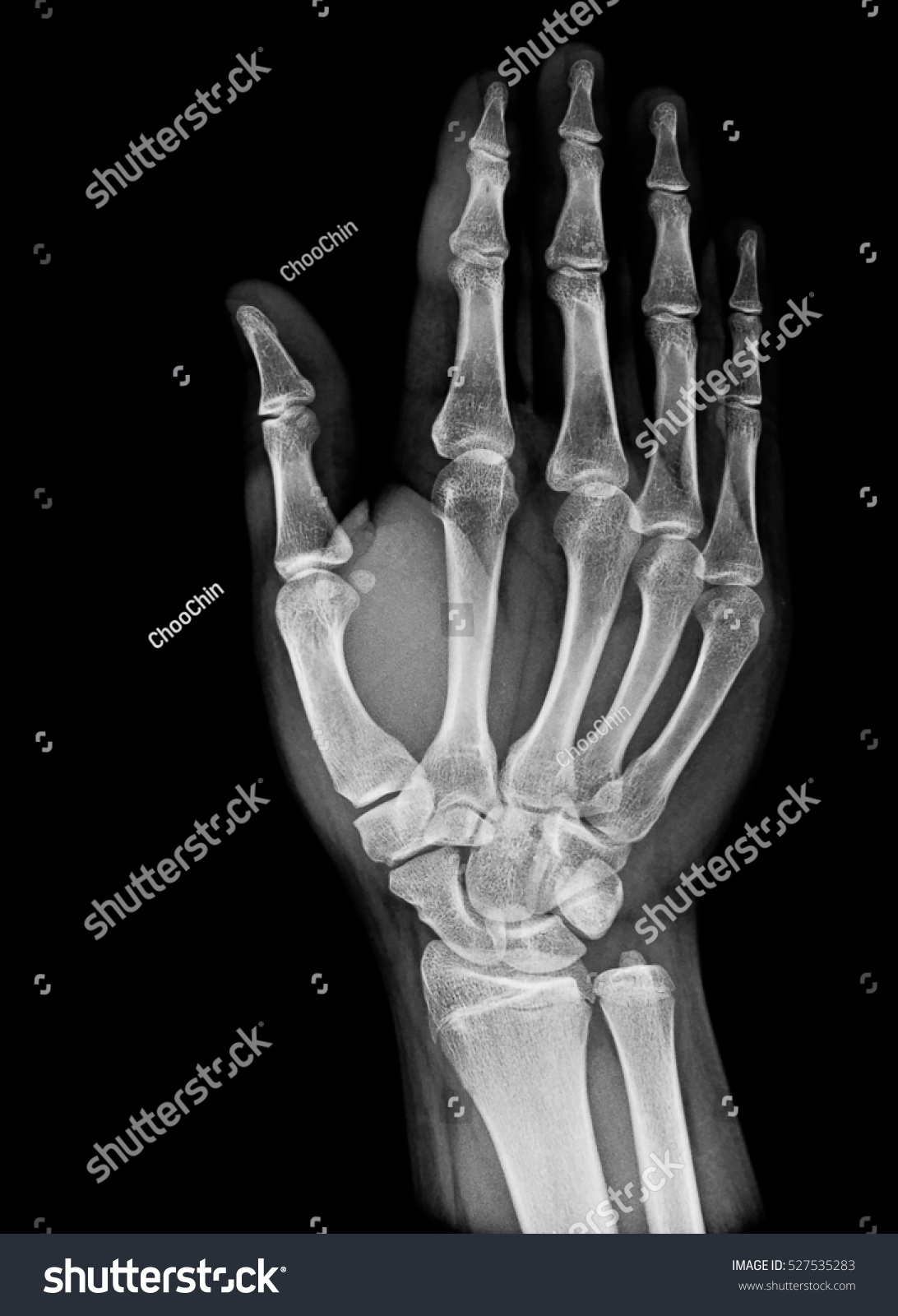 Xray Image Normal Hand Xray Medical Stock Photo (Edit Now) 527535283 ...