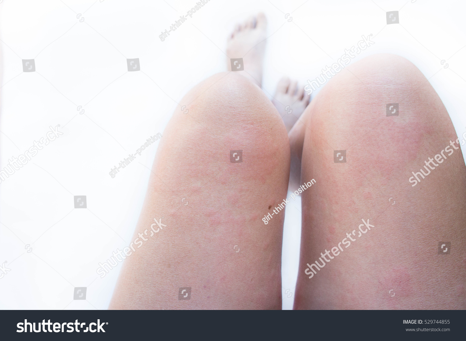 Allergic Skin Rash Swelling Itching Skin Stock Photo (Edit Now