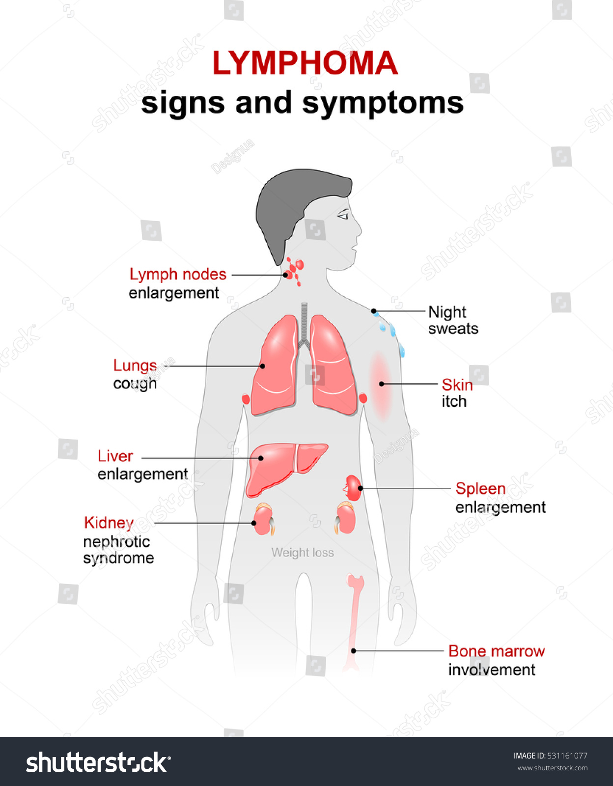 lymphoma cancer disease signs symptoms man stock illustration