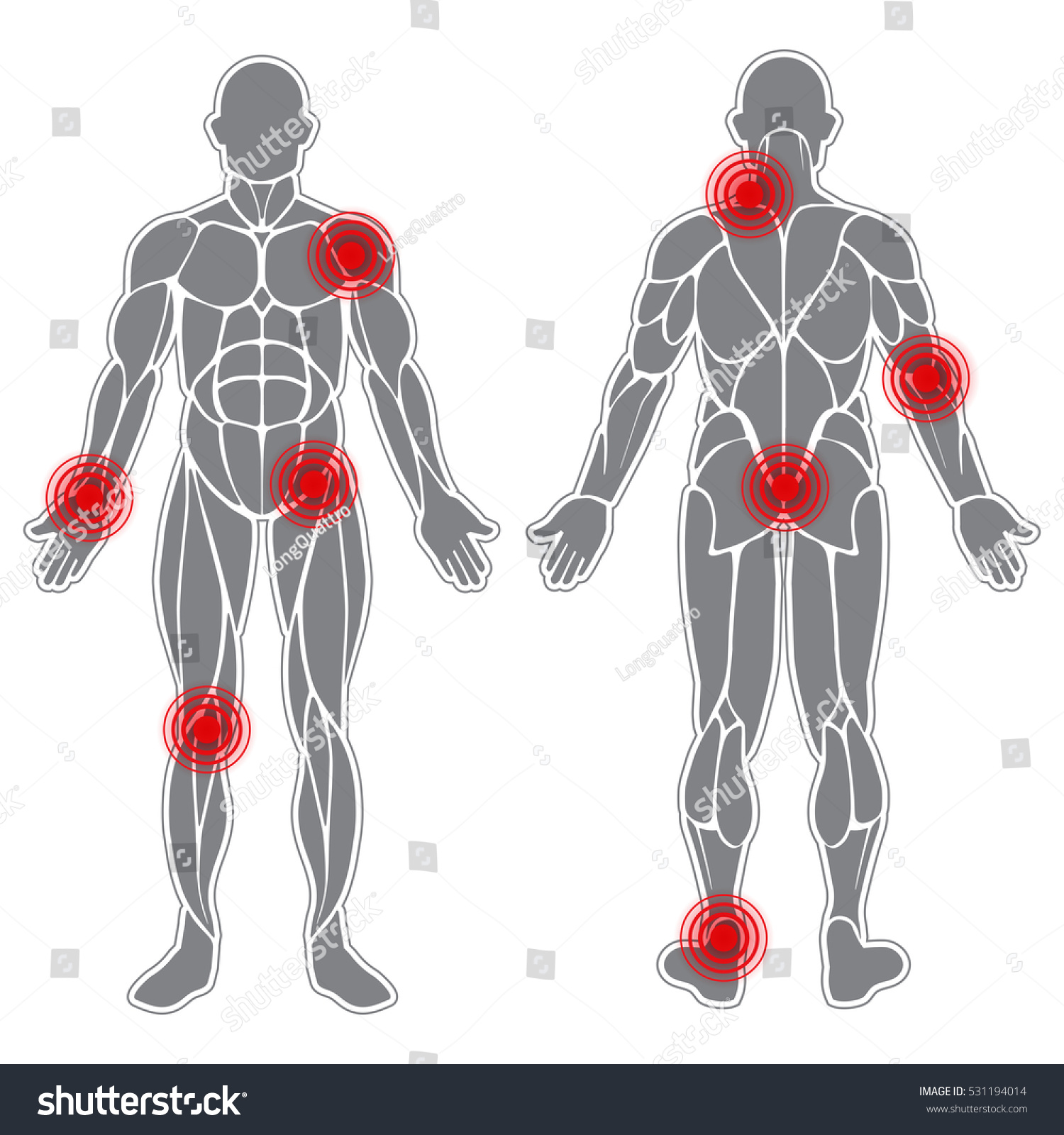 Human Body Silhouette Muscles Sore Spots Stock Vector Royalty Free